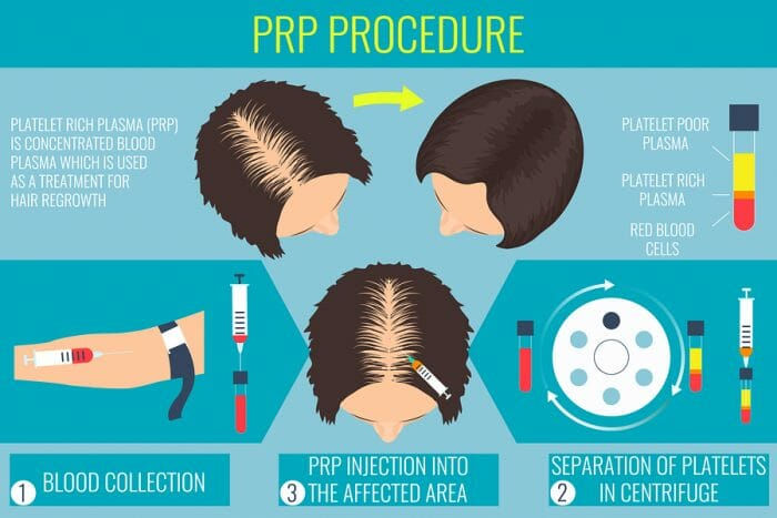 Infographic PRP Edmonton Procedure