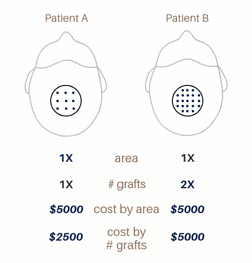 diagram of hair transplant cost and density