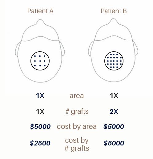 Hair Transplant Cost - Hair Transplant Edmonton | Dr  Nakatsui