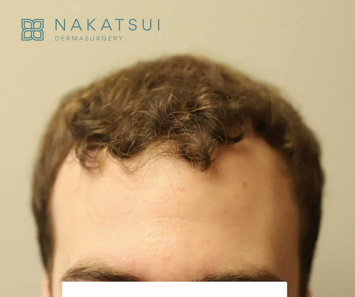 before and after hair transplant calgary