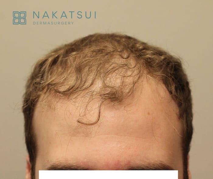 Before hair transplant Calgary