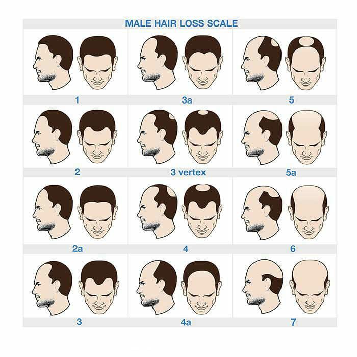 norwood scale male pattern balding