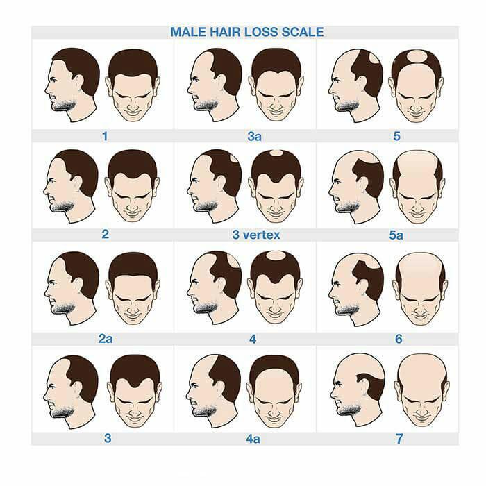 hair loss chart